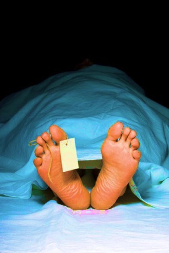 dead-feet